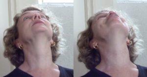 ginástica facial exercício 6